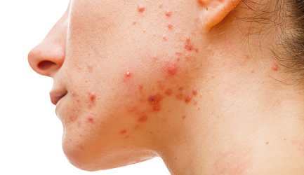 Acne in Pune